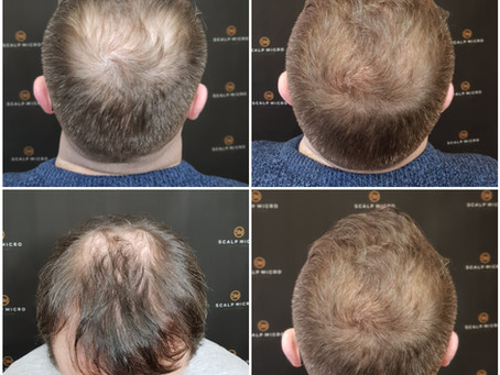 Things You Should Know Before Choosing A Scalp Micropigmentation Clinic