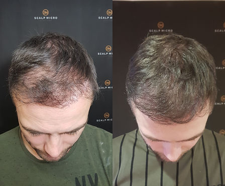 Densify Thinning Hair