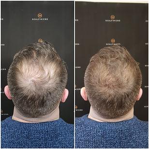 eliminate baldness