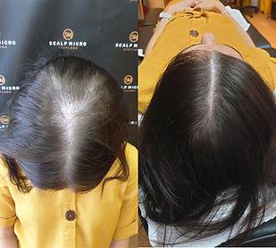 stop thining hair