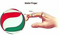 פציעות אצבעות בקרב שחקניות כדורשת