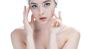 The Difference Between Over-the-Counter and Medical Skin Care Products