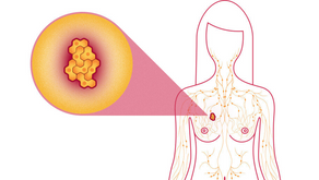 Integrative Therapeutic Options for Treating Stage Four Breast Cancer