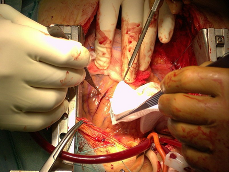 Case Study: Pulsed Electromagnetic Field Therapy Relieves Pleural Effusion After Open Heart Surgery