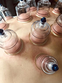 cupping pic.JPG