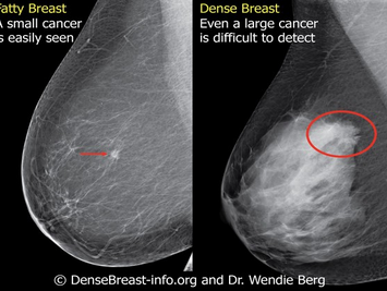 East Africa's first 3D mammograms boosts fight against breast cancer