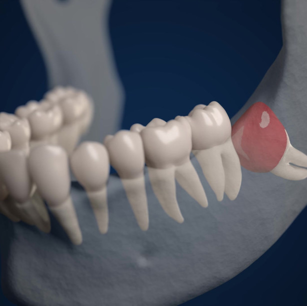 Mandibular Dentigerous Cyst