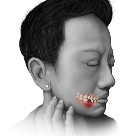 MRONJ - Pathology Illustration