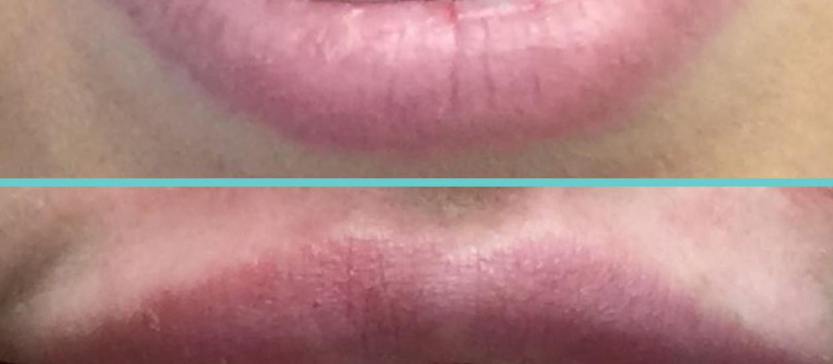 Botox and Gingival display on smiling