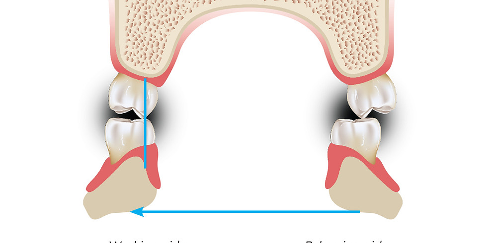 Occlusion and Occlusal Classifications From Orthodontic Prospect