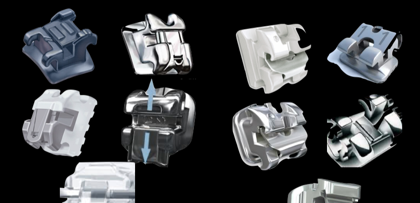 Ceramic self-ligating brackets are NOT better than conventional ceramic brackets!