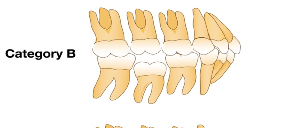 Infraoccluded Primary Molars From an Orthodontic Perspective