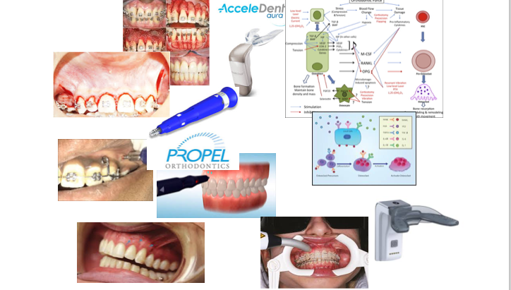 How we can accelerate tooth movement? Can we justify it?