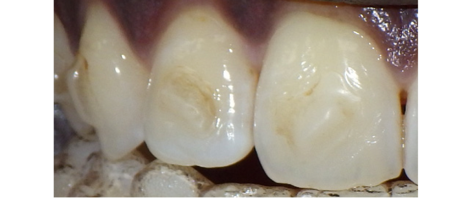 How to reduce attachments flashes (AFs) during clear aligner therapy (CAT)?