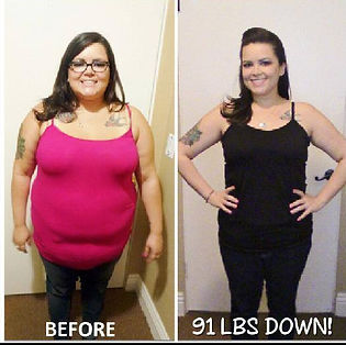 Weight loss surgery washington