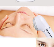 Thermage Skin Treatment