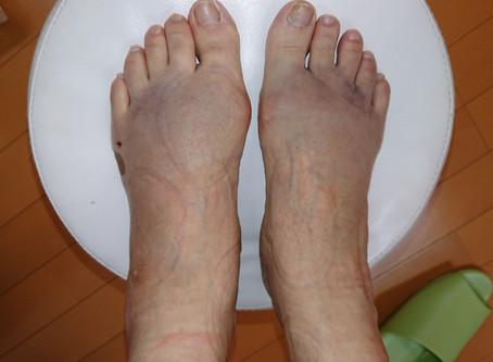 足首捻挫の治療と経過