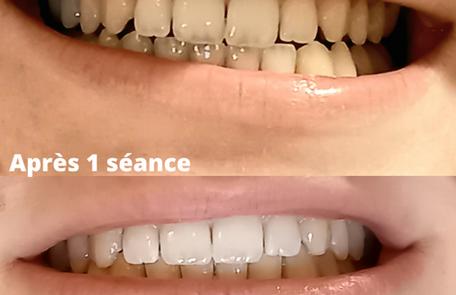 Blanchiment dentaire - Mon Atelier Beaut