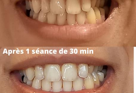Blanchiment dentaire - Mon Atelier Beauté