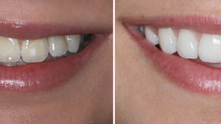 Ceramic Veneers & Onlays
