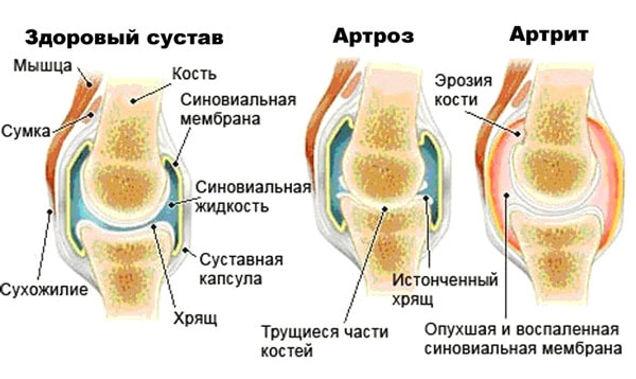 Risunok-pokazyivaet-otlichie-artrita-ot-