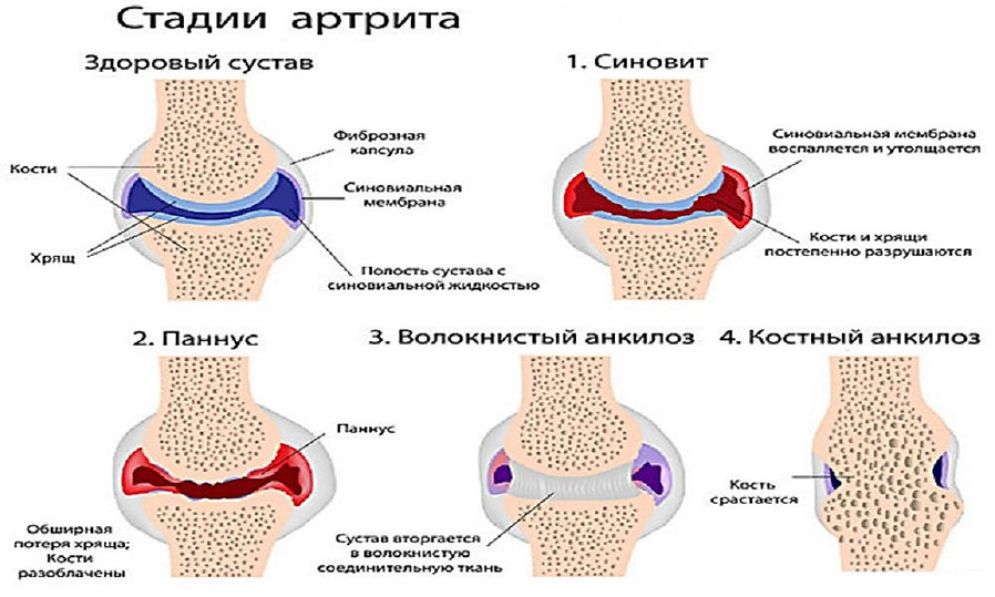 Stadii-artrita.jpg