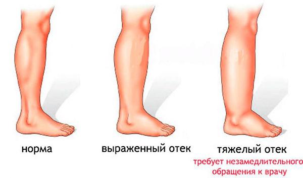 angiodistrofiya-1-1024x602.jpg