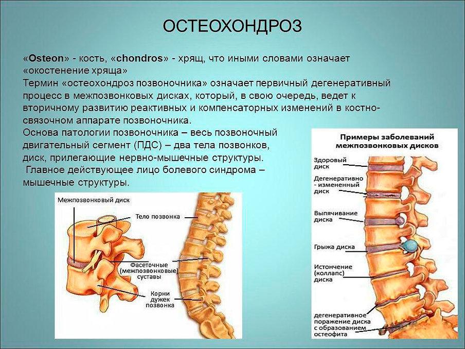 Определение-остеохондроза.jpg