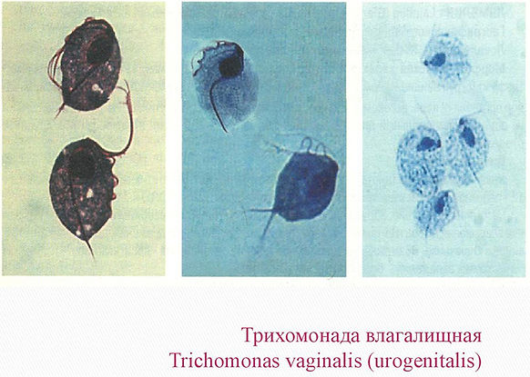 Trichomonas-vaginalis.jpg