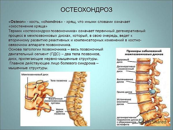 osteohondroz-1.jpg