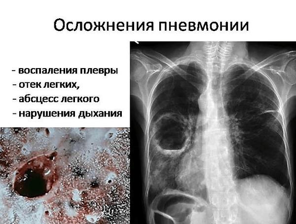 Осложнения-пневмонии.png