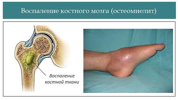 Osteomielit-kosti-simptomy-ostryj-psihos