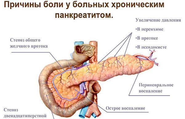 pankreatit-3.jpg