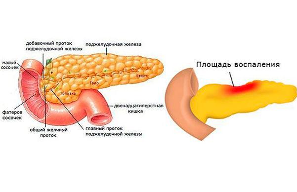 pankreatit-u-pozhilykh-lyudey-vidi.jpg