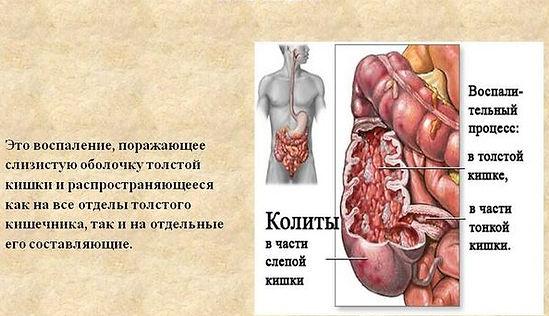 kolit_kishechnika-001.jpg