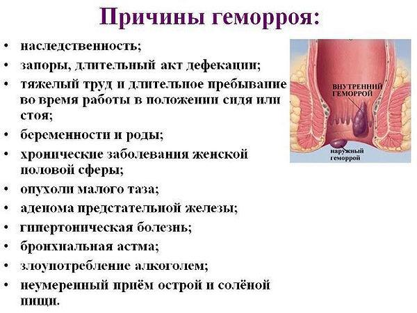 Osnovnye-prichiny-gemorroya.jpg