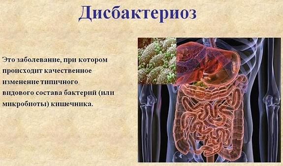 priznaki-lechenie-profilaktika-3.jpg