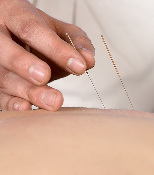 Acupuncture_edited.jpg