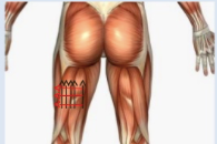 Injection Region Around The Hamstring