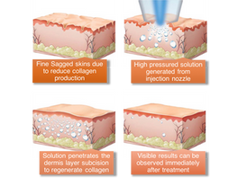 <Insights> Cosmetic Air Lifting & Water Light Injection for Face Lifting and Skin Rejuvena