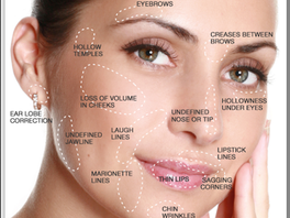 <Insights> Top 5 Facial Injection Danger Zones for Dermal Fillers