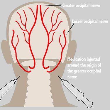 Occipital Neuralgia Diagram