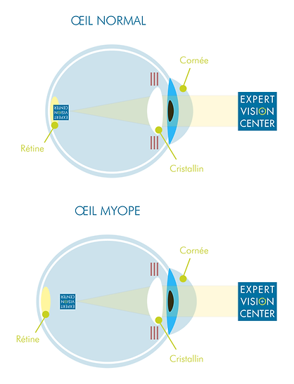 Schéma myopie oeil cornée cristallin expert vision center