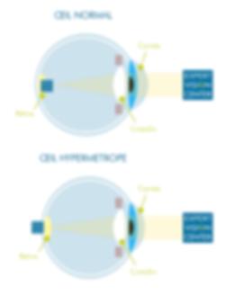 schéma hypermétropie oeil cristallin cornée expert vision center