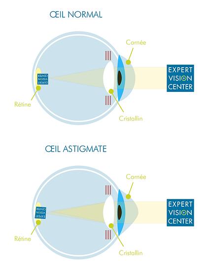 Schéma astigmatisme oeil cornée cristallin expert vision center