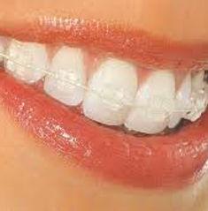 Anna Ventura invisalign Biodents Clinica dental HOLística integrativa neurofocal