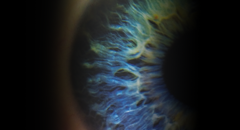 eyeball3.png