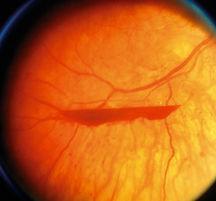 Retinal haemorrahge