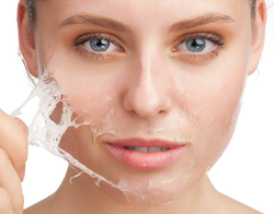 chemical-peel-resurface-your-skin.png