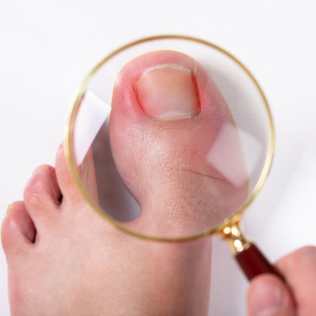 How to fix ingrown or painful toenails?
